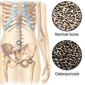 A cross-diagram of a bone with Osteoporosis showing how weak the bone is