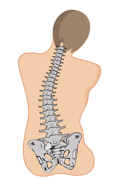 Curved spine from poor posture